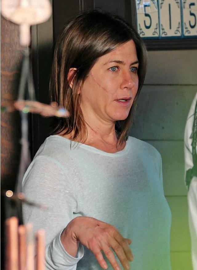 Jennifer Aniston tiene cicatrices en la cara