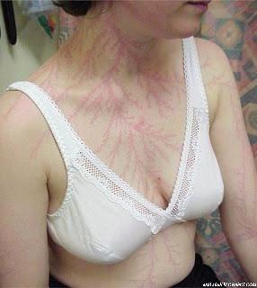 http://asalasah.blogspot.com/2014/11/yang-terjadi-pada-kulitmu-jika-tersambar-petir.html