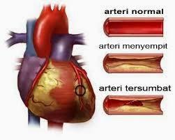 Penyakit Jantung Bocor dan Lemah Jantung