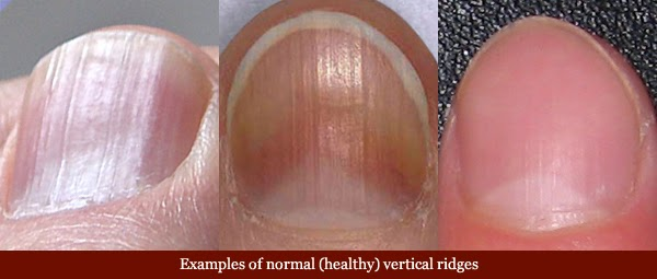 Fingernails And Disease Are More Closely Related Than You Think Check Your Nails Often To Protect Health