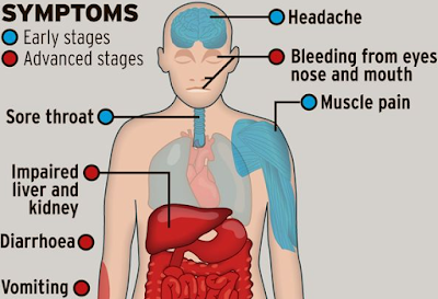 How Ebola Virus Spreads, Symptoms, and Treatment