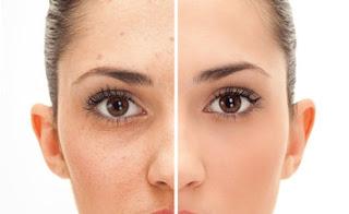 Facial Acne Removal Harga Perawatan Jerawatan Terbaru Tanpa Dipencet