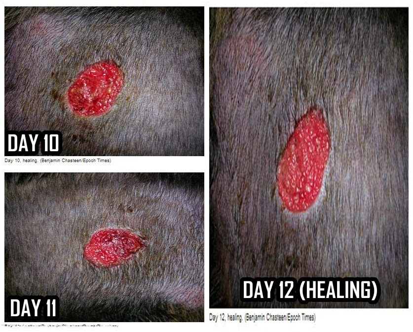 Cancer Cure? Lotion Draws Out Tumor Without Bleeding