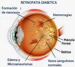 Retinopatía y otros problemas oculares