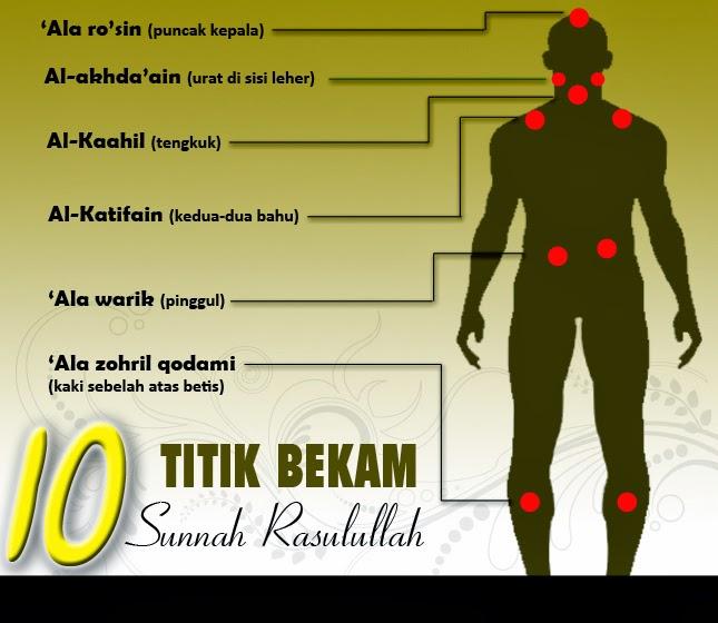 Titik Bekam Sunnah