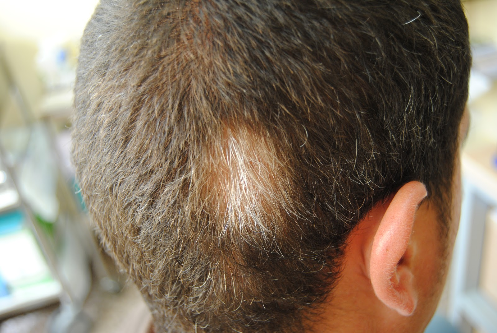 Natural los medios para el lavado de los cabello