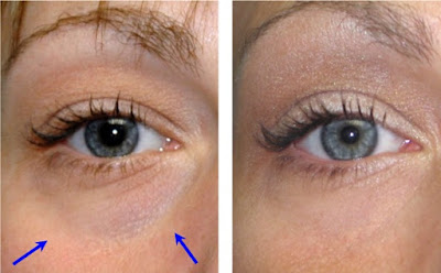 eyelid surgery before and after picture