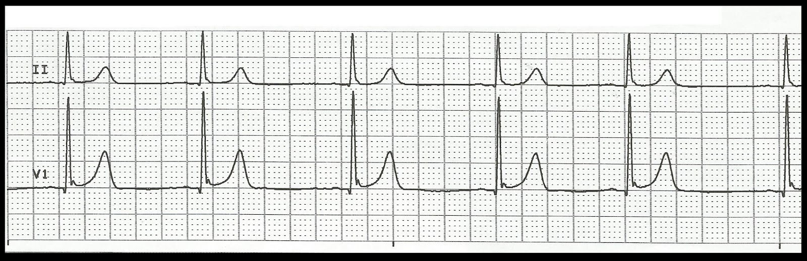 Float Nurse: Practice EKG Rhythm Strips 163