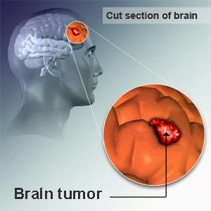 http://obatlimfomaherbal.blogspot.com/2014/01/wanita-kanker-otak.html