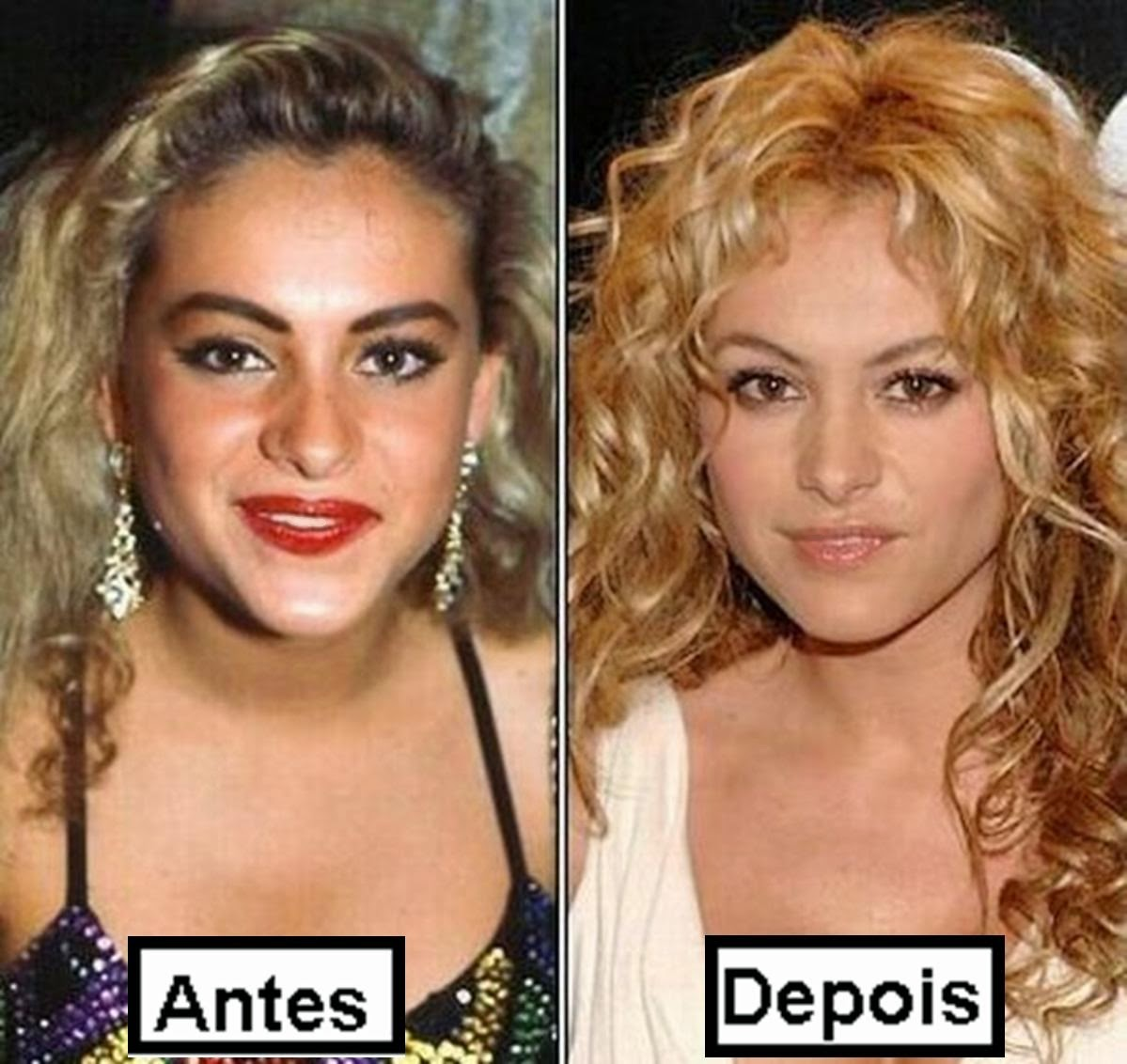 O antes e o depois dos famosos, confira fotos