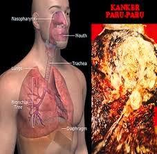 Gejala Penyebab Penyakit Paru Paru