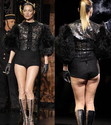 kate moss cellulite