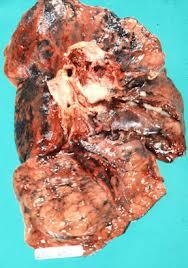 Bronchogenic-carcinoma