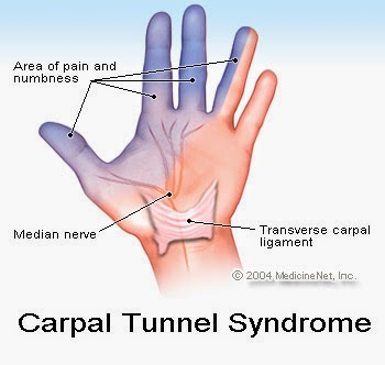 Carpal Tunnel Syndrome  showing hand parts that get affected