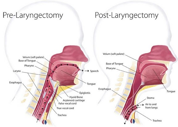 Laryngectomy Diagram | My Voice Urgent Care Cpr And Anesthesia After Laryngectomy
