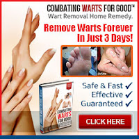 getting rid of your wart