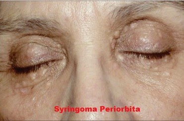 Syringoma Periorbita Medical Treatment Therapy