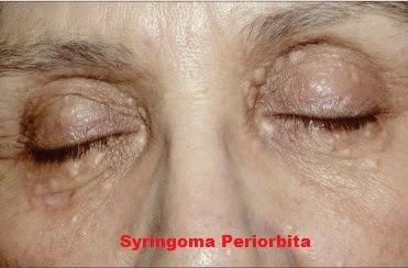 Syringoma Periorbita Medical Treatment Therapy