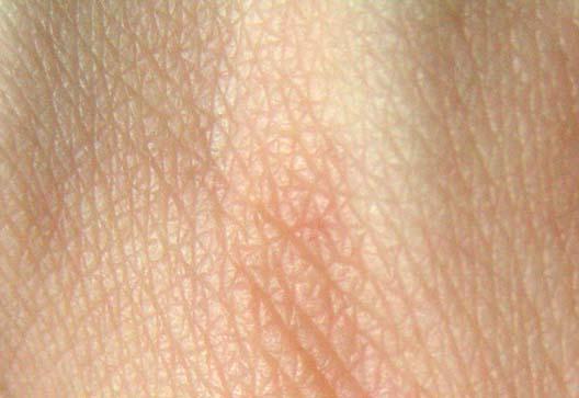 Skin by photo 40