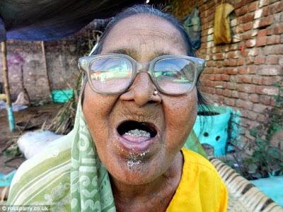 Nenek Ini Makan 1 Kg Pasir Setiap Hari