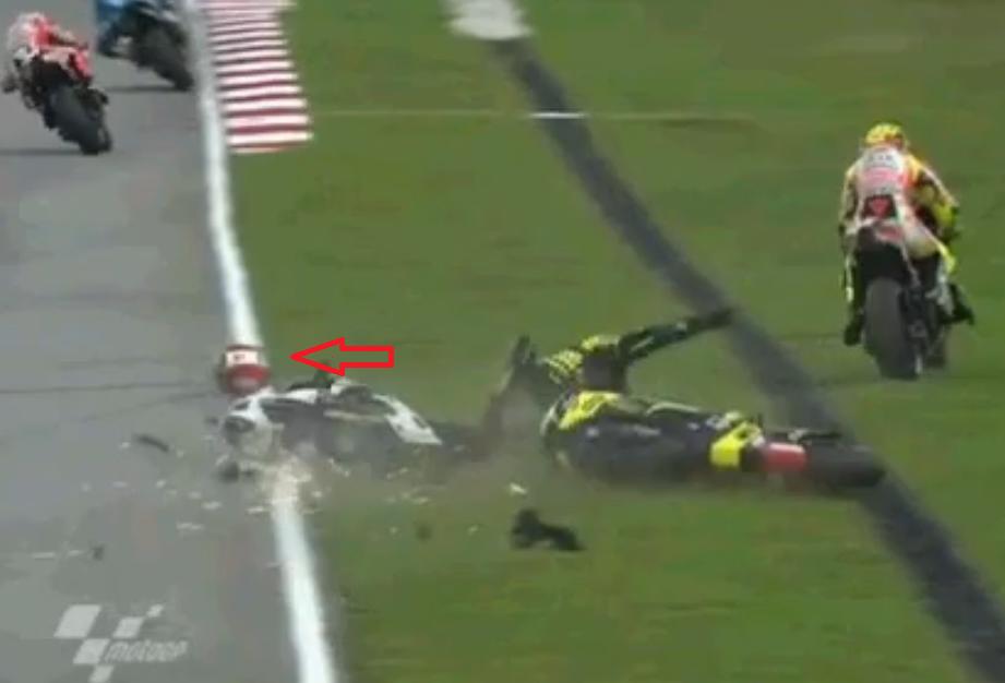 Valentino Rossi injury It will take 30 to   CrashNet