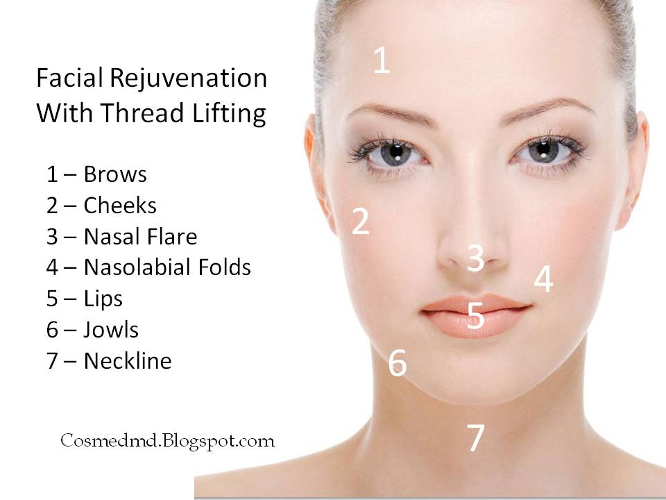 Thread Lifts The No Surgery Face Lifting Alternative Cosmetic