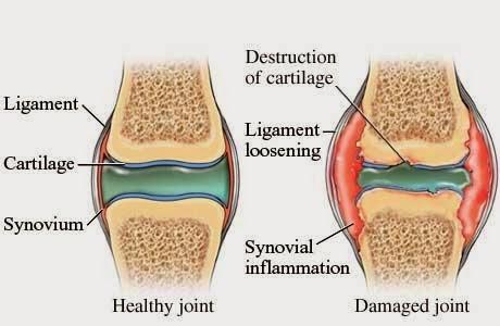cara memulihkan lutut yang tersedera