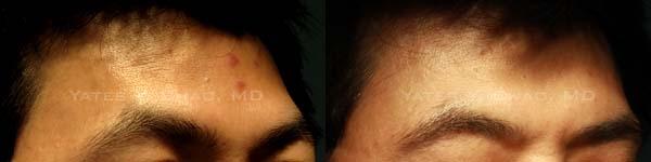 3D聚左旋乳酸, 豐額, 塑然雅, 舒顏萃, Sculptra, PLLA, forehead, 趙彥宇