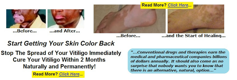 White skin discoloration; white spots