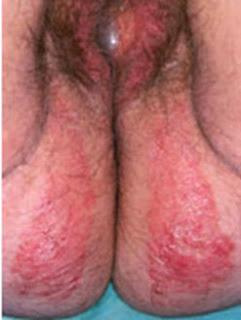 El artículo al tema atopichesky la dermatitis