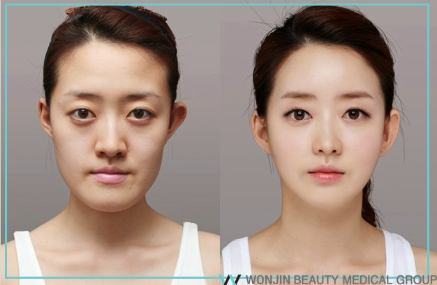 Korean Two Jaw Surgery ~ Wonjin Plastic Surgery Clinic Korea