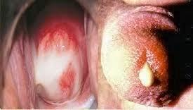 contoh penyakit kencing nanah