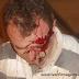 PARAIBA: Homem fica ferido após colisão entre duas motos em Araruna