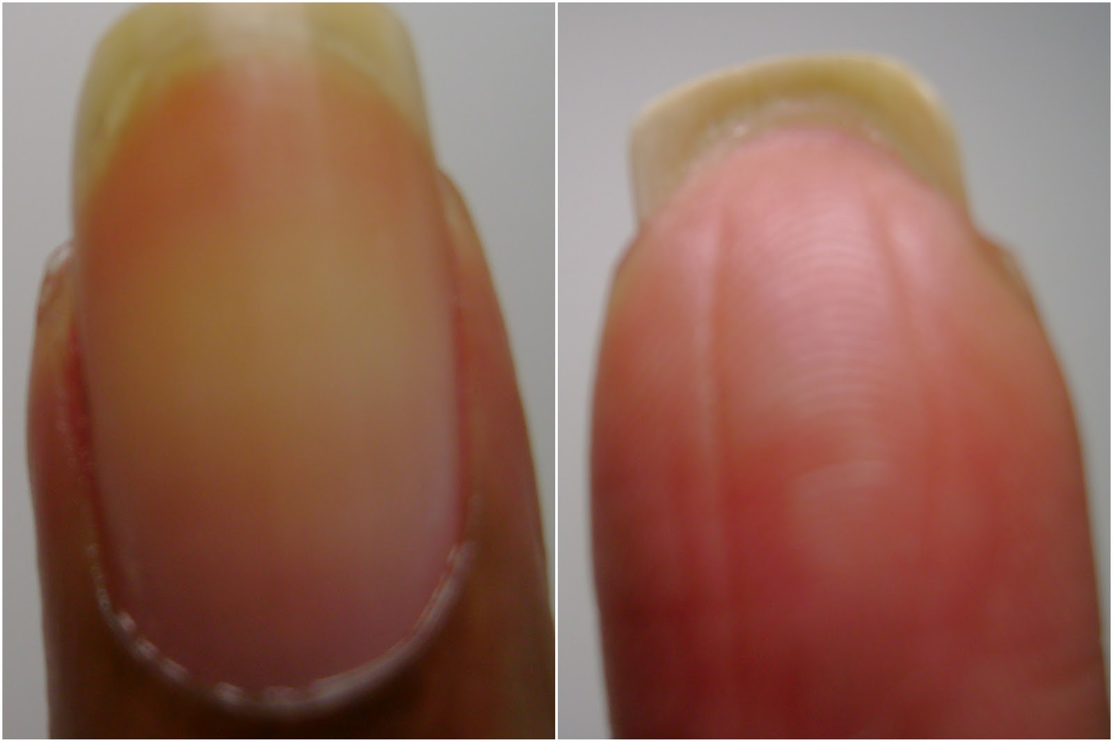 Craft Nail: Fingernail Anatomy, Nail Saving Tips