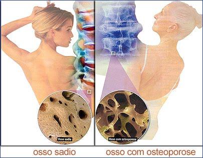http://1.bp.blogspot.com/_-UDOgR1DqsY/TFwOOArCA7I/AAAAAAAAE4g/L4z9G4RraYU/s1600/Osteoporose3_1.jpg