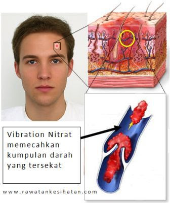 Nitrite Therapy, darah yang mempunyai cukup nitrite akan mengalir dengan lancar