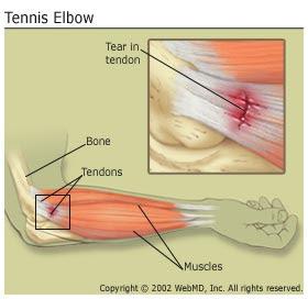 Tenis Elbow Hastalığı