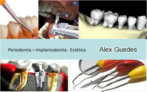 Periodontia Implantodontia e Estética