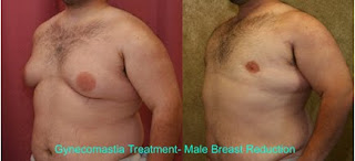 Gynecomastia Treatment- Male Breast Reduction