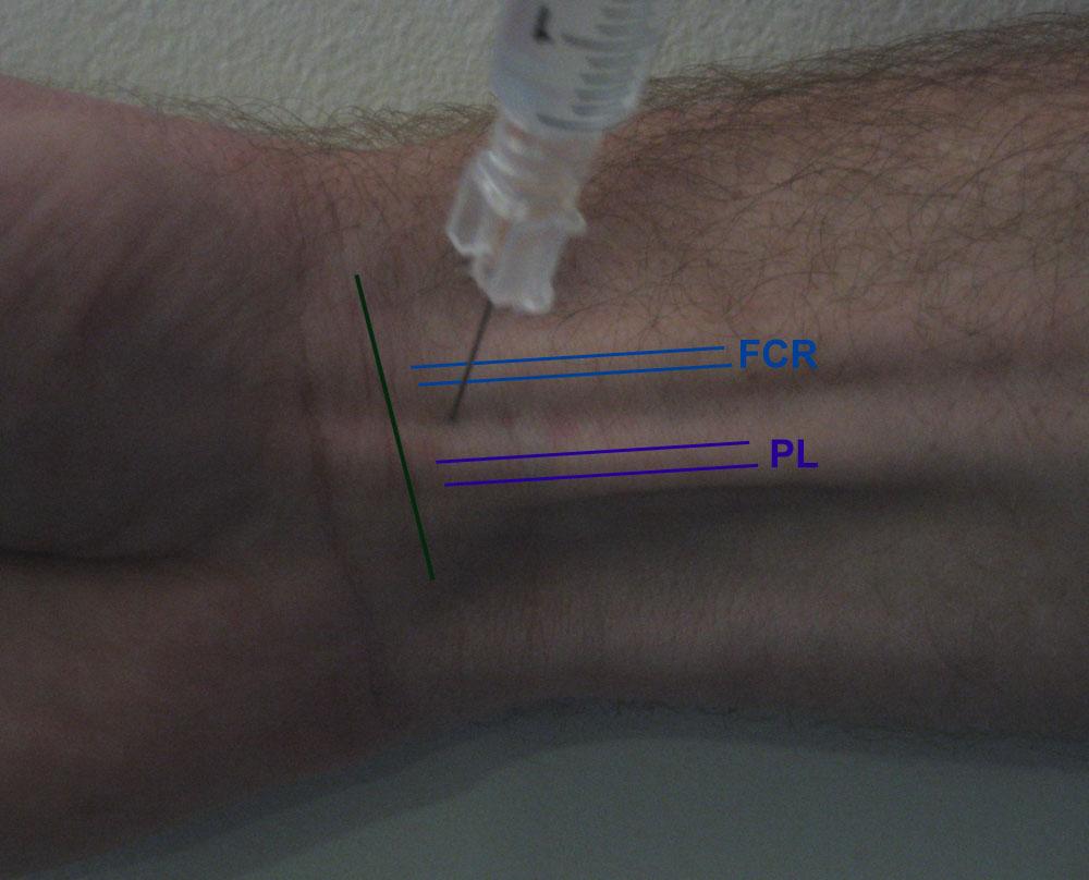 pg medic  wrist block