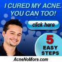 Fastest Acne Cure @ Last