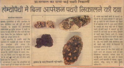 natural cures for gallstones headache
