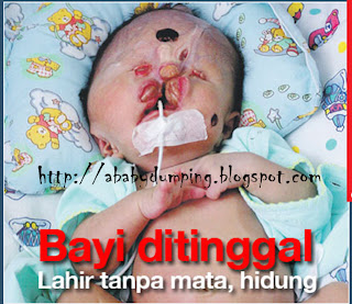 effect of baby dumping There are three effects of baby dumpingthat is effects on individuals, the baby and society the effect of individuals is cause by illegal way of aborting the child and left a bad effect on.