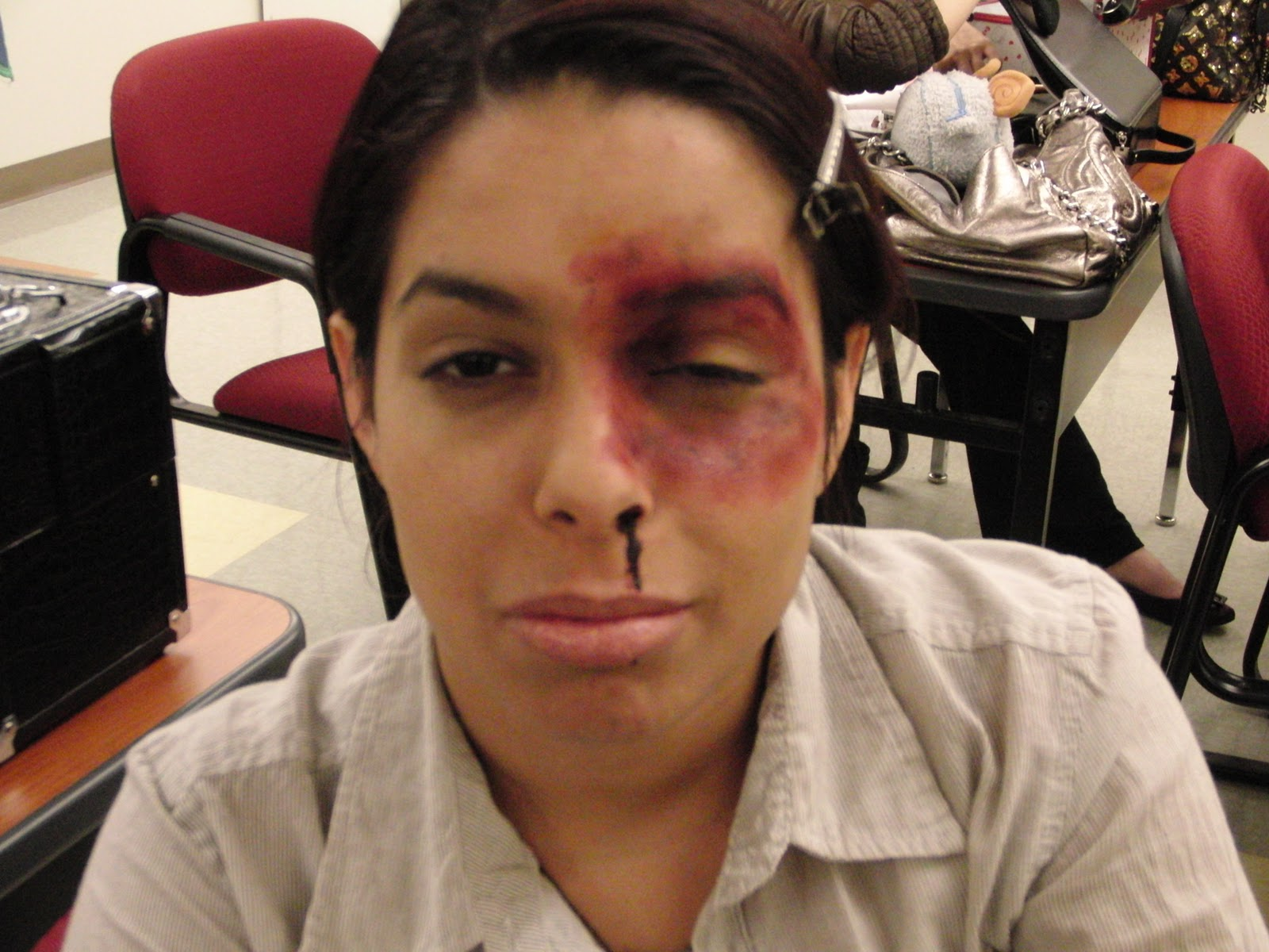 Battered Women; Abused Women; Women, Abused; Women, Battered Battered Women Pictures