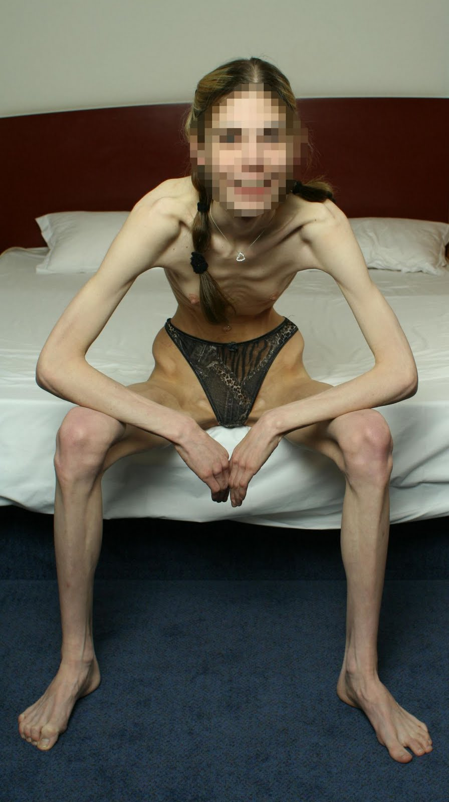Anerxic Nude Teen 28