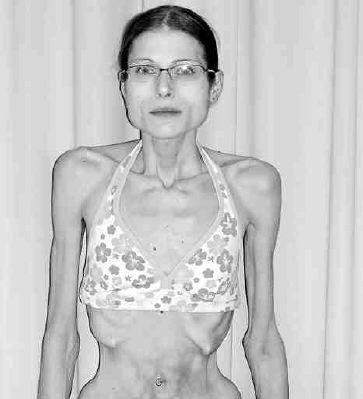 Aimee Moore anorexia