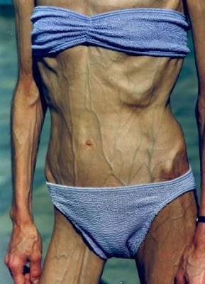 anorexia older woman