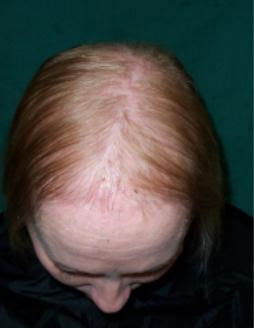 lanugo, hair loss, anorexia