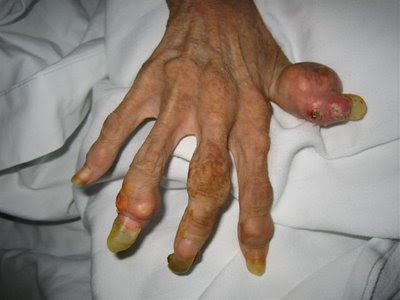 hand, 46-year-old anorexic woman
