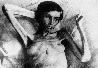 Starving woman who survived a Nazi death camp